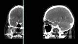 Jamie Drouin - MRI RMX - Video
